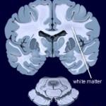 La materia bianca del cervello influisce sulla memoria