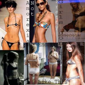 Problemi di anoressia