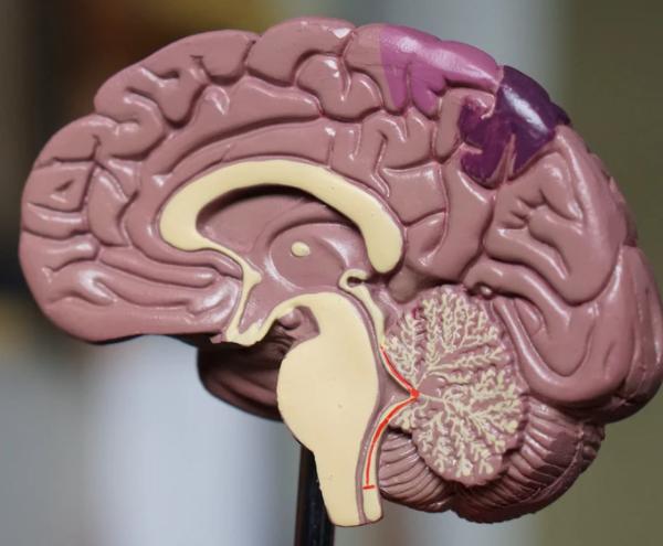 Gli effetti della schizofrenia sul cervello umano