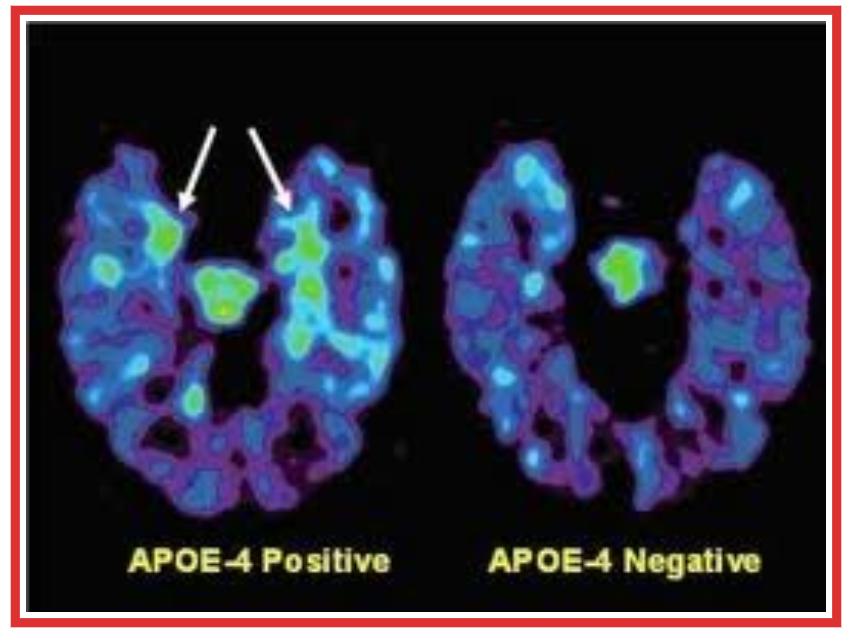 L'Alzheimer e il gene APOE